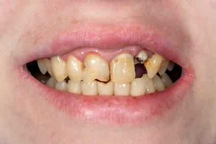 broken tooth closeup. Girl at the dental reception